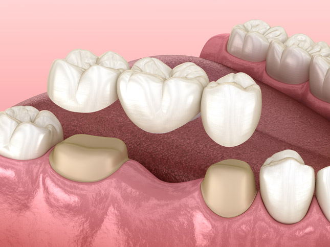 Dental Bridges Works