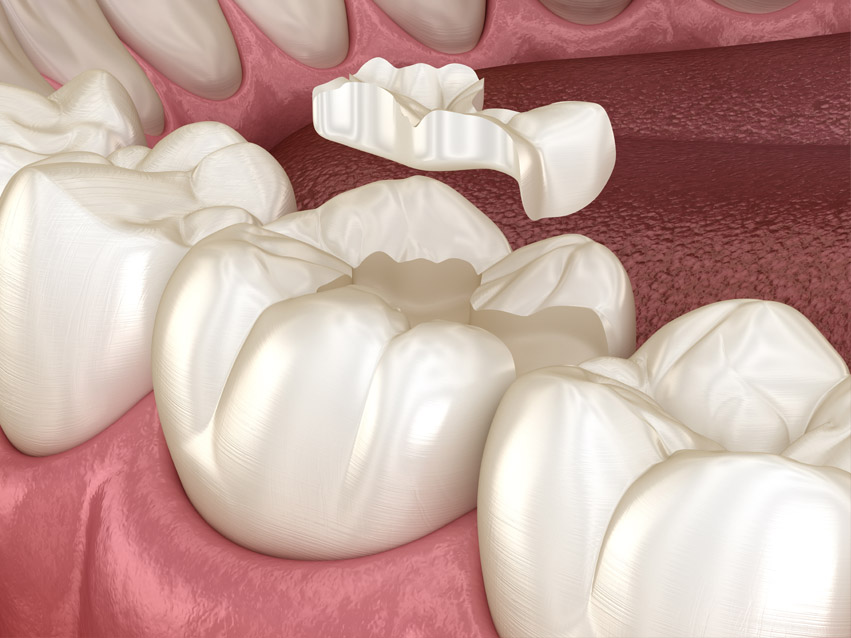Dental Inlays And Onlays