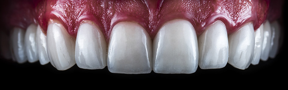 Get Straighter And Whiter Teeth With Veneers
